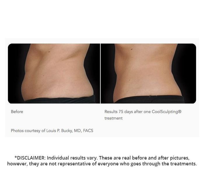 Coolsculpting Prices in Canada