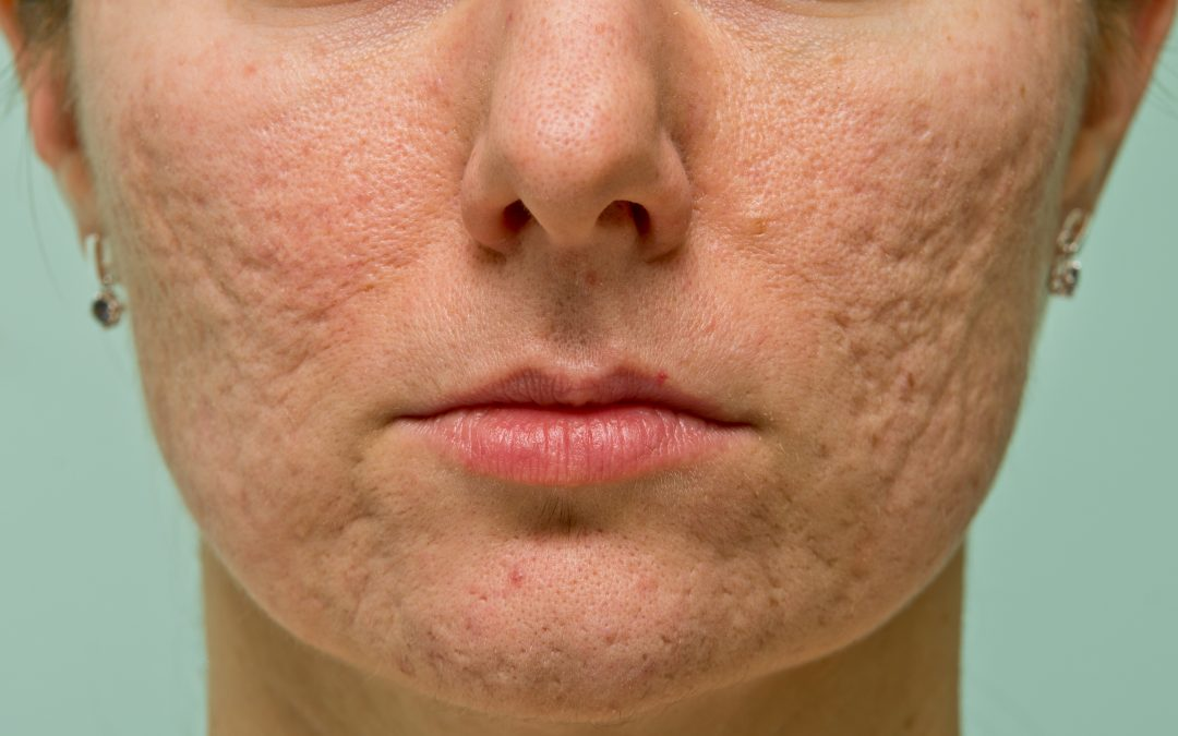 The Fastest Way to Clean Up Acne Scars | Laser Acne Treatment