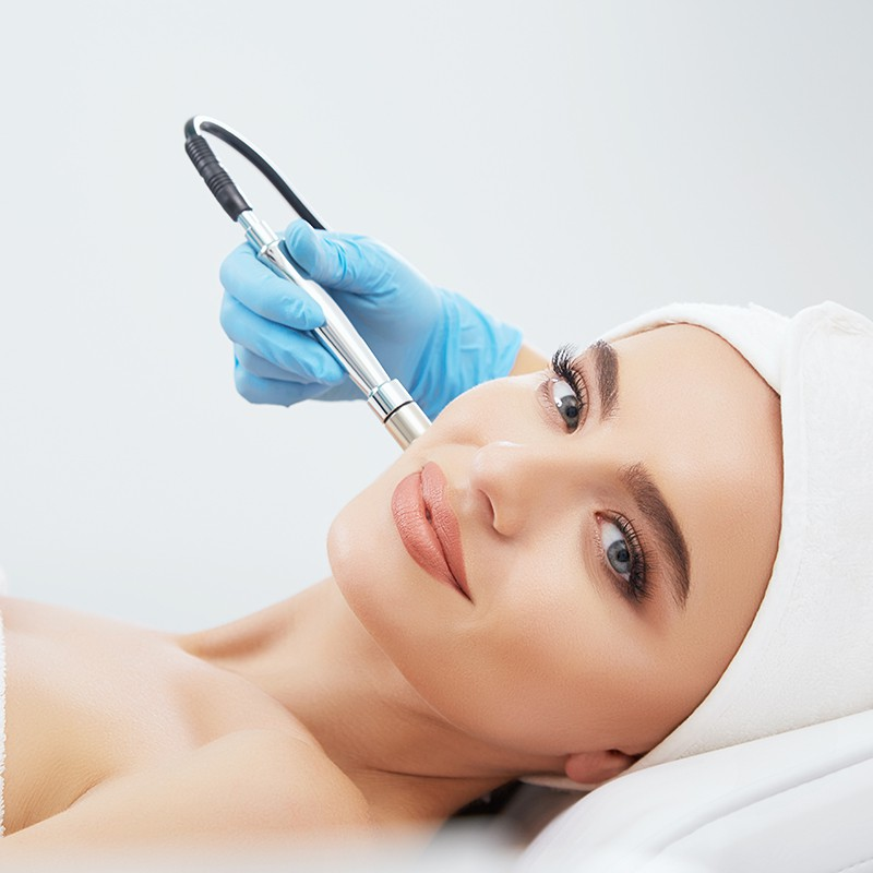 Microdermabrasion for Acne and Scarring