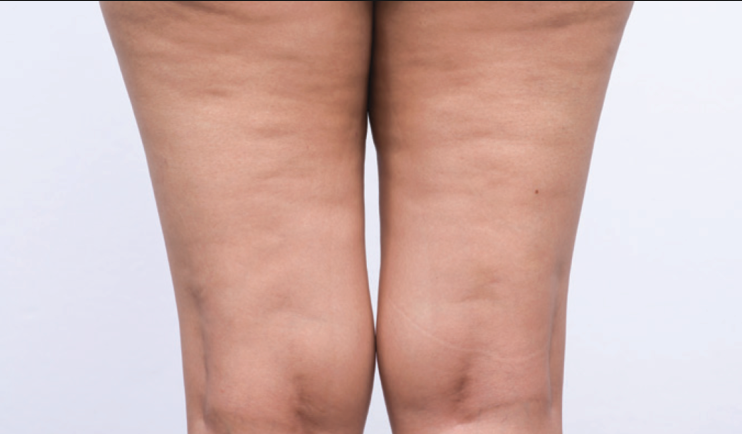 There are many reasons why women can get cellulite.