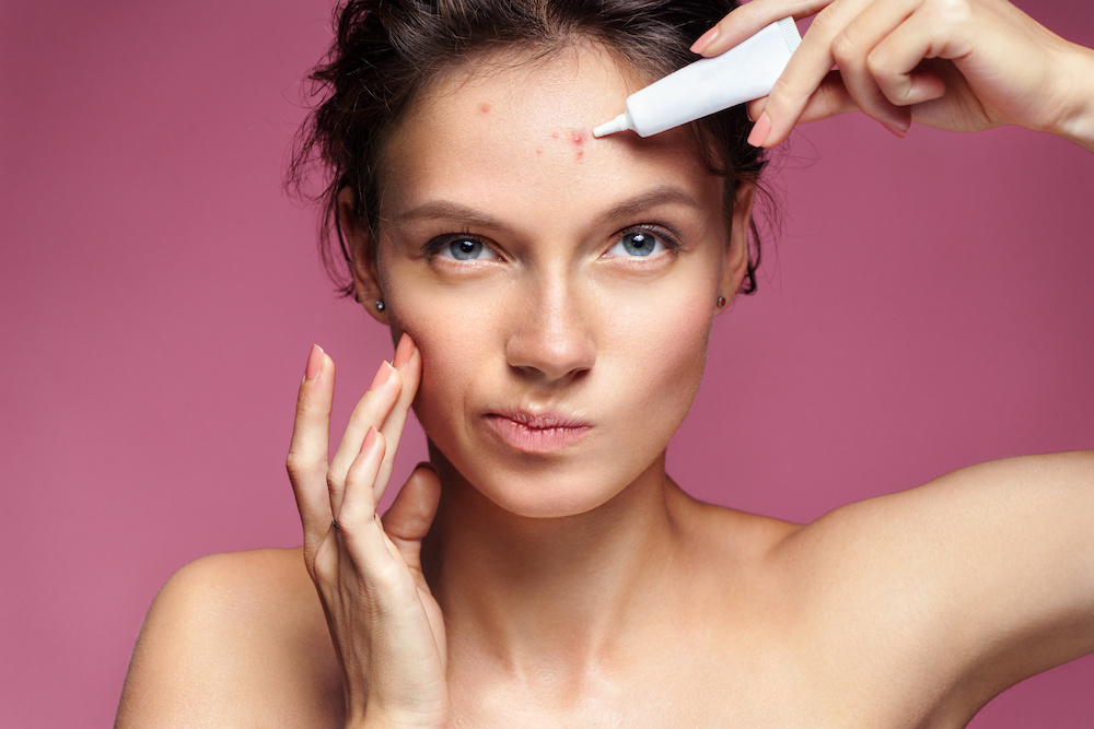 acne scars medications