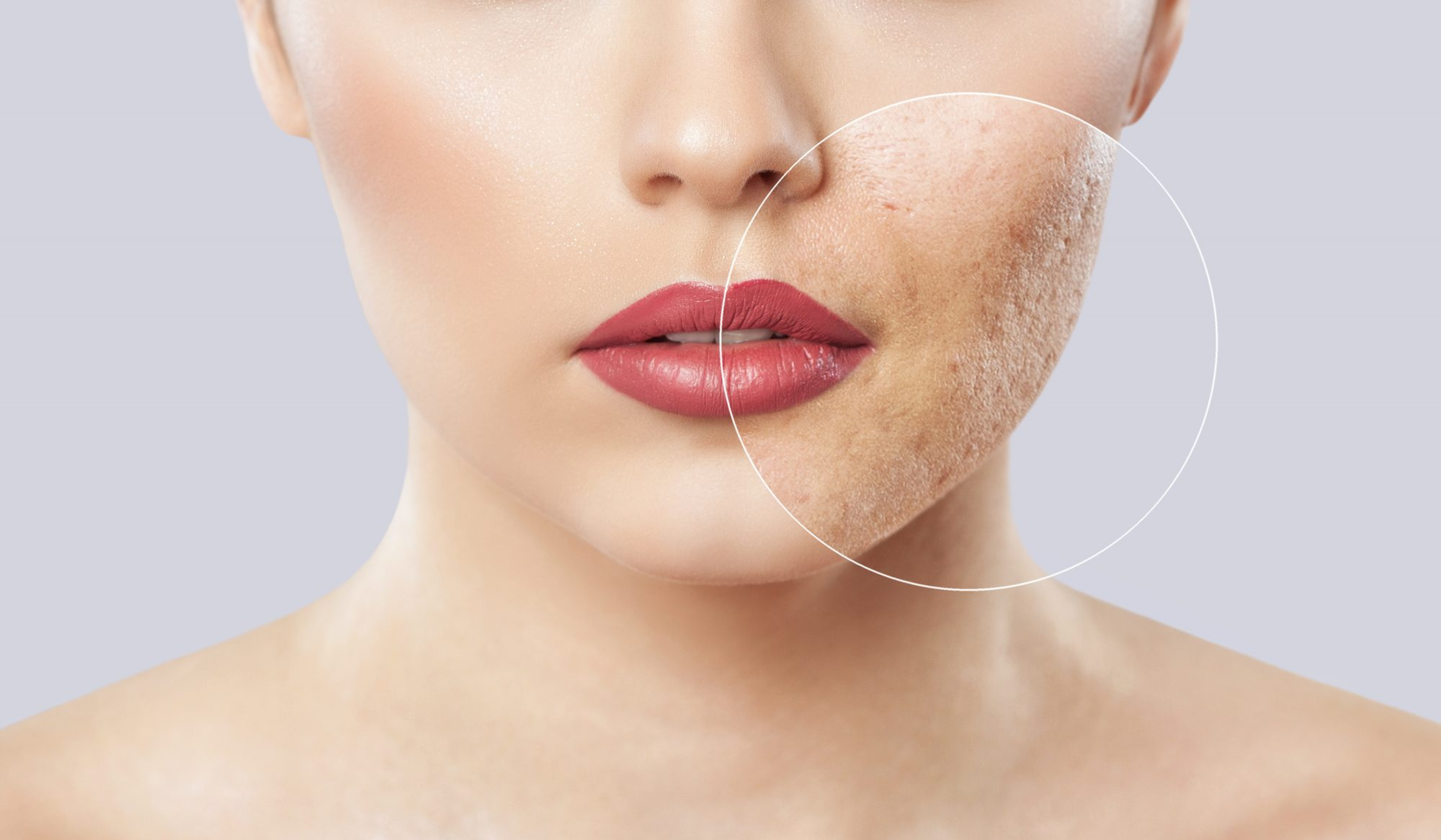 How can I fight acne scars