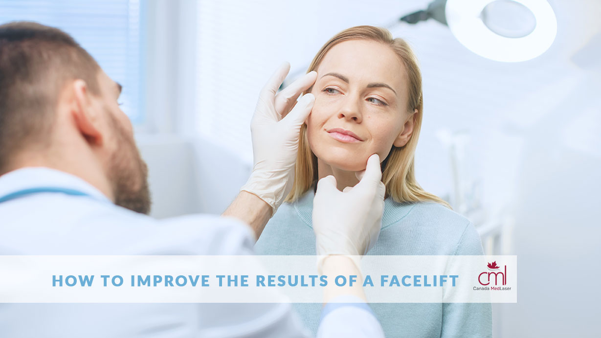 results of a facelift