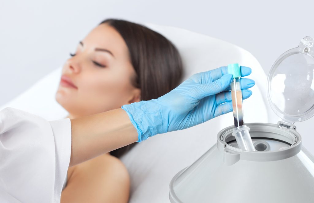 PRP Vampire Facial Cost, Results, & Side effects