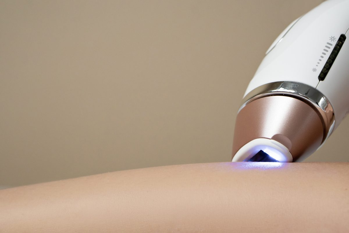 How Much Does Laser Hair Removal Treatment Cost in Toronto?