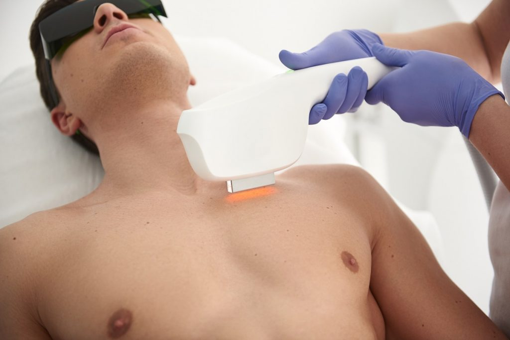 Laser Hair Removal Cost in Toronto