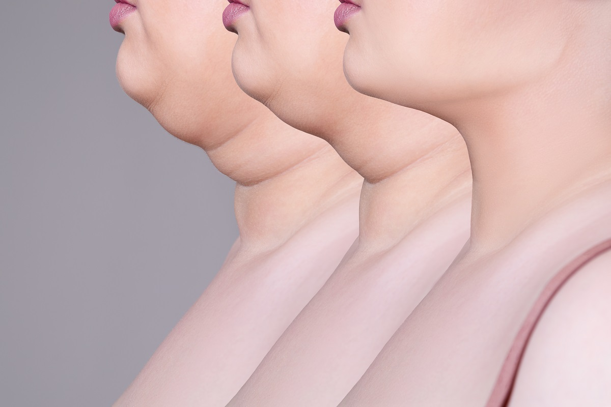 Double Chin Removal Cost