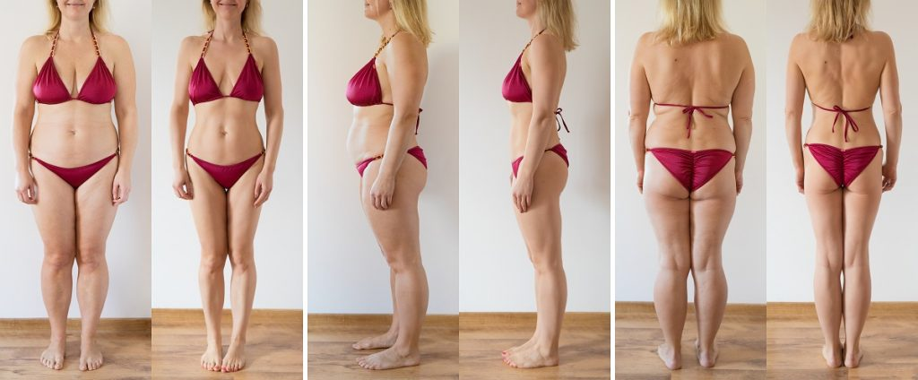 How Much is the Cost of CoolSculpting in Toronto?