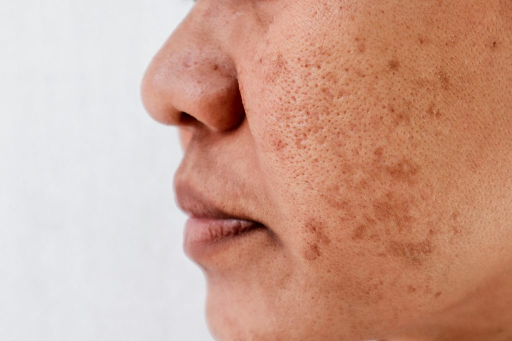 How Much Does Melasma Treatment Cost?