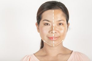 Treatment options for melasma