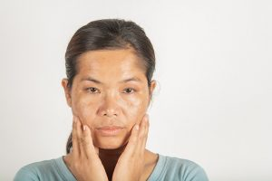 How Much Does Melasma Treatment Cost in Toronto?