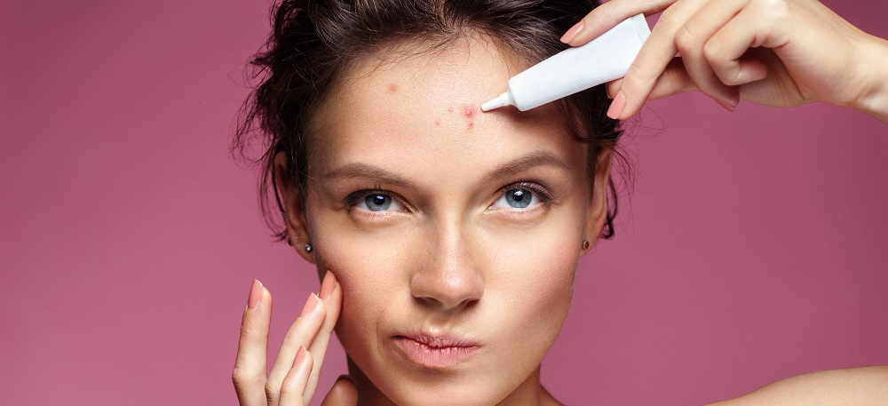 Acne and Rosacea: Know the Difference