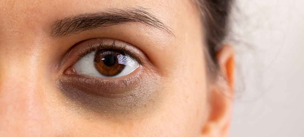 How to Get Rid of Dark Circles and Under Eye Bags