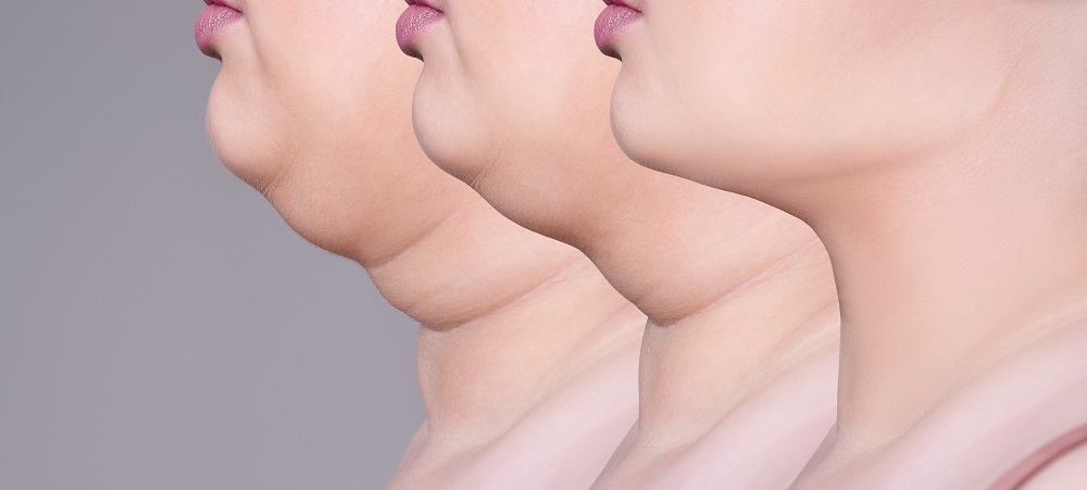 How to Get Rid of Double Chin in Newmarket