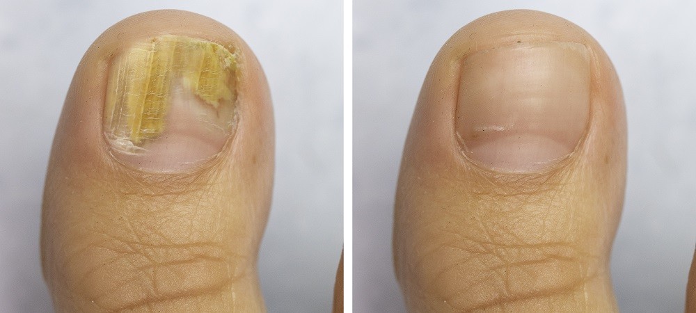 How to Treat Nail Fungus Effectively