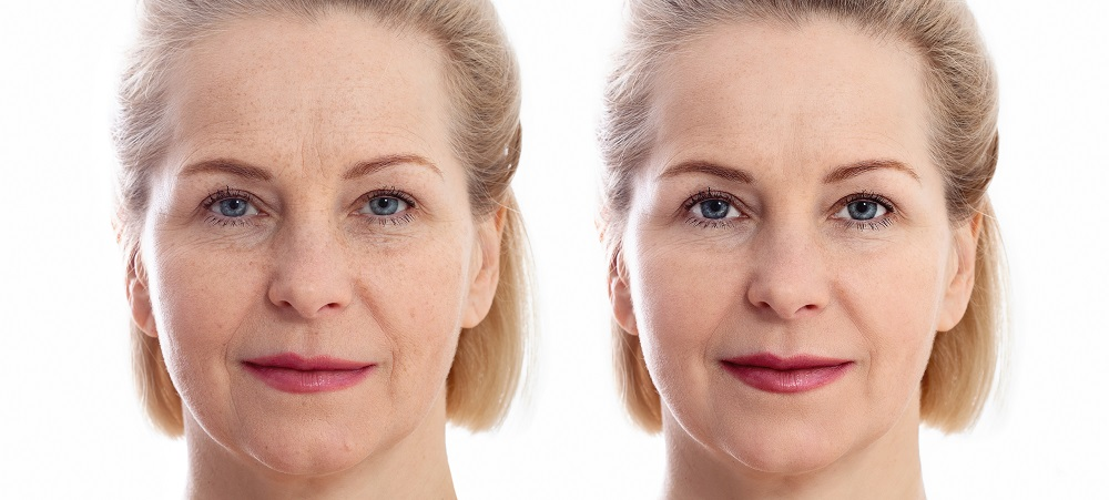Keep your Skin Beautiful: Tips for Skin Anti-ageing