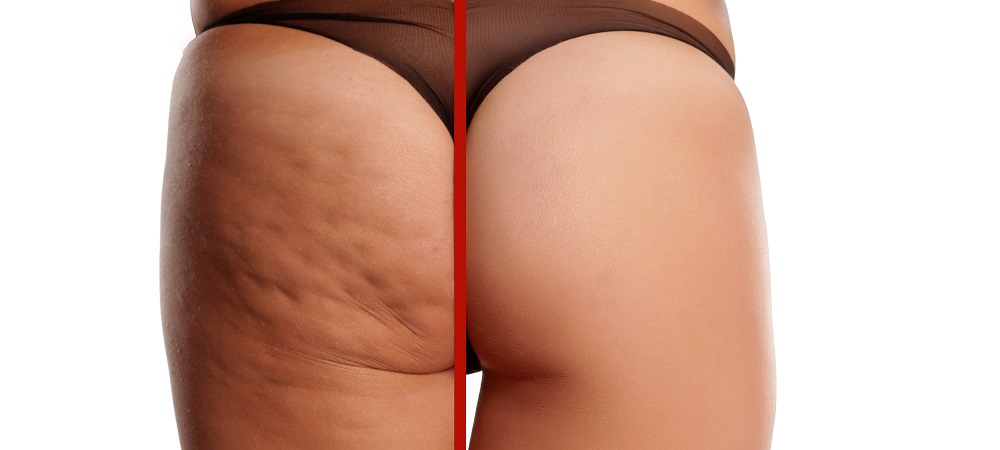 Best Treatments for Removing Cellulite