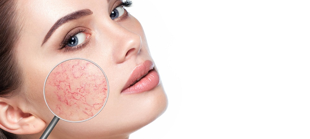 Top Causes and Treatments for Rosacea