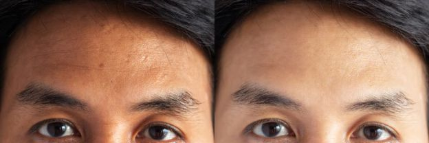 What Are The Causes of Forehead Wrinkles?