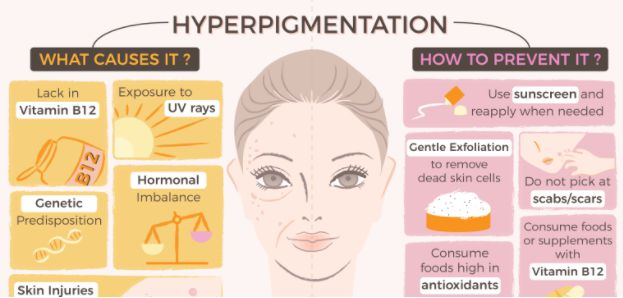 what causes pigmentation