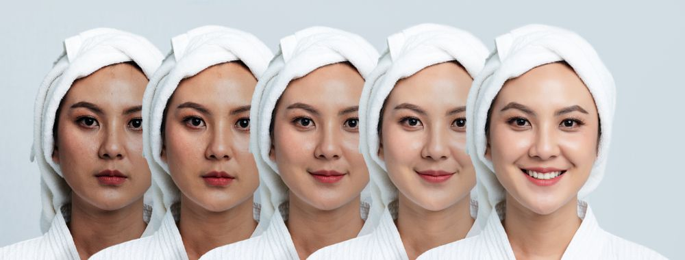 What is Skin Pigmentation