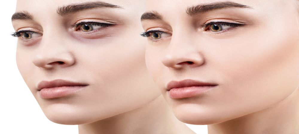 Under Eye Filler Treatments