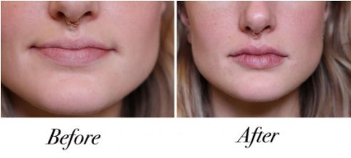 before & after Lip Injections