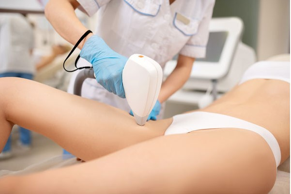 Laser hair removal on thigh