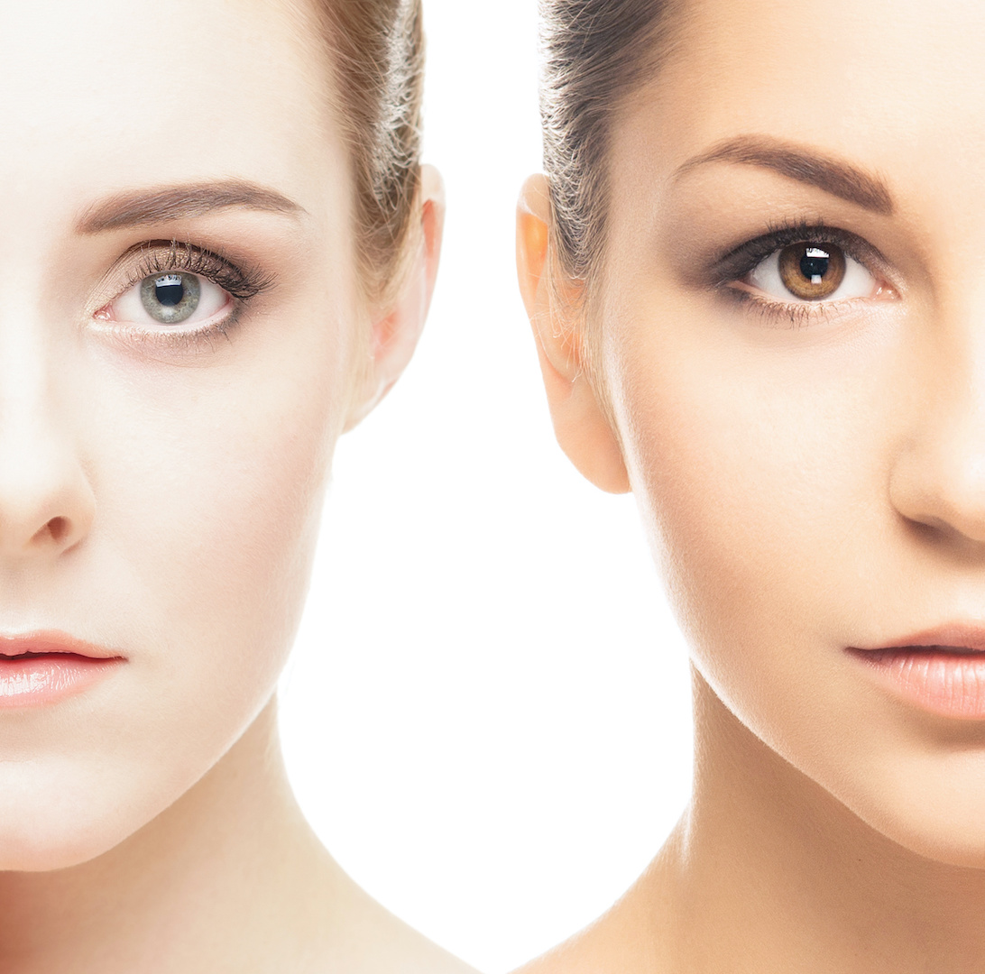 Laser Hair Removal | Toronto Laser Clinics - Permanent Hair Removal