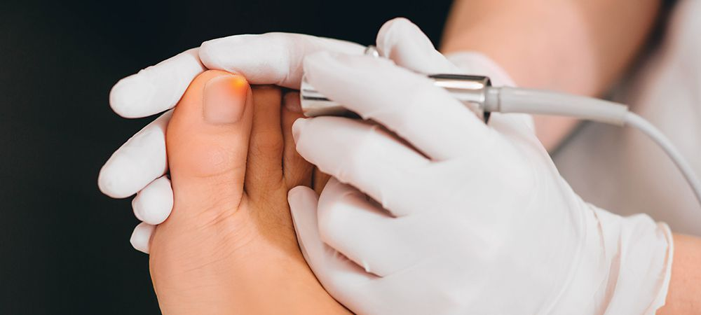 how laser toenail fungus therapy works